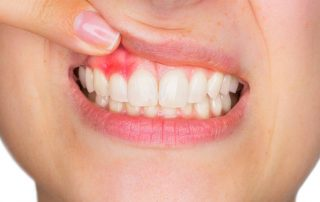 woman with swollen gum