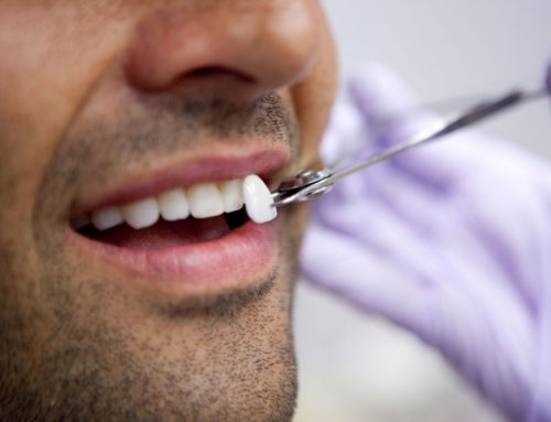 Top Three Smile Makeover Treatments