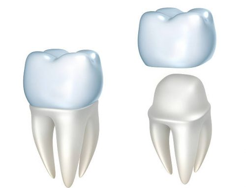 Getting Your First Dental Crown