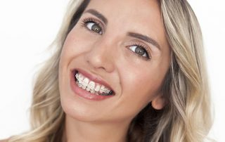 adult woman with braces