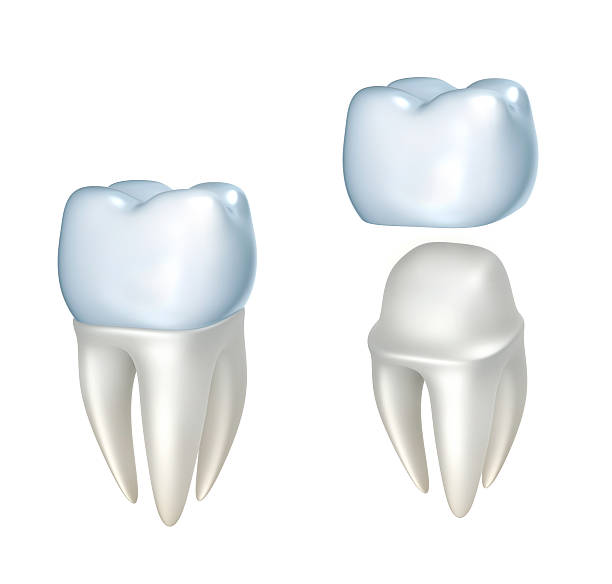 crown implant