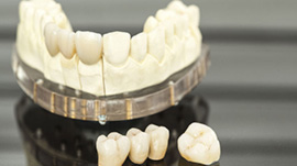 dental treatments crowns bridges
